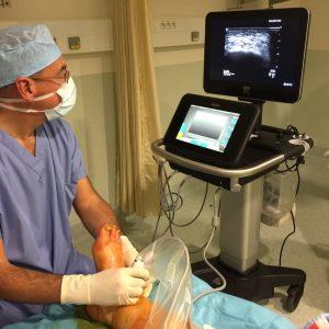Anesthésie locorégionale sous contrôle échographie: Dr LE GUEN Hervé Anesthésiste Dr PERRIER Cyril Chirurgien