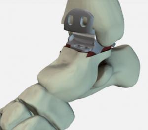 Integra: prothèse de cheville