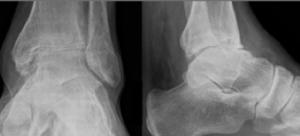 Le bilan radiologique montre l'importance de l'arthrose de la cheville. Docteur Cyril PERRIER. Polyclinique de l'Atlantique. Nantes Saint-Herblain
