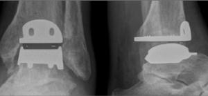 Contrôle radiologique de la mise en place d'une prothèse de cheville Hintegra. Docteur Cyril PERRIER. Polyclinique de l'Atlantique. Nantes Saint-Herblain