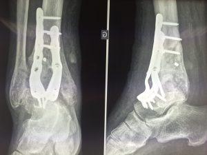 Arthrodèse de cheville fixée par plaque: radio de face et de profil